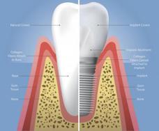 Natural vs. Implant Crown